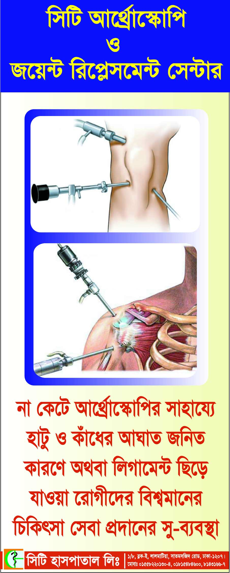 A Great Arthroscopic Surgery in Bangladesh